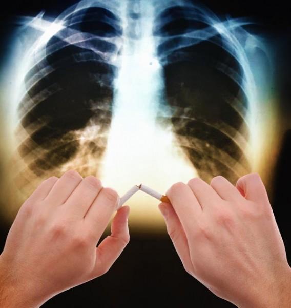 72% курильшиков рискуют получить хроническую обструктивную болезнь лёгких