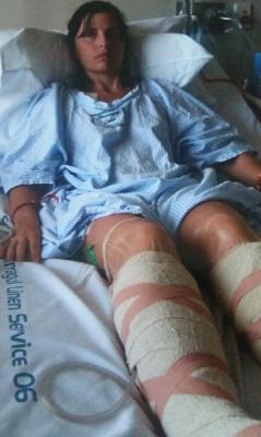 Лечение варрикоза едва не лишило австралийку ног