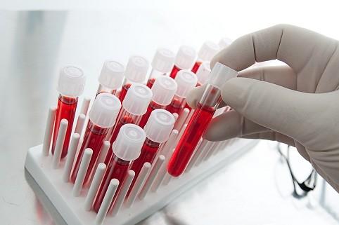Группа крови влияет насексуальность