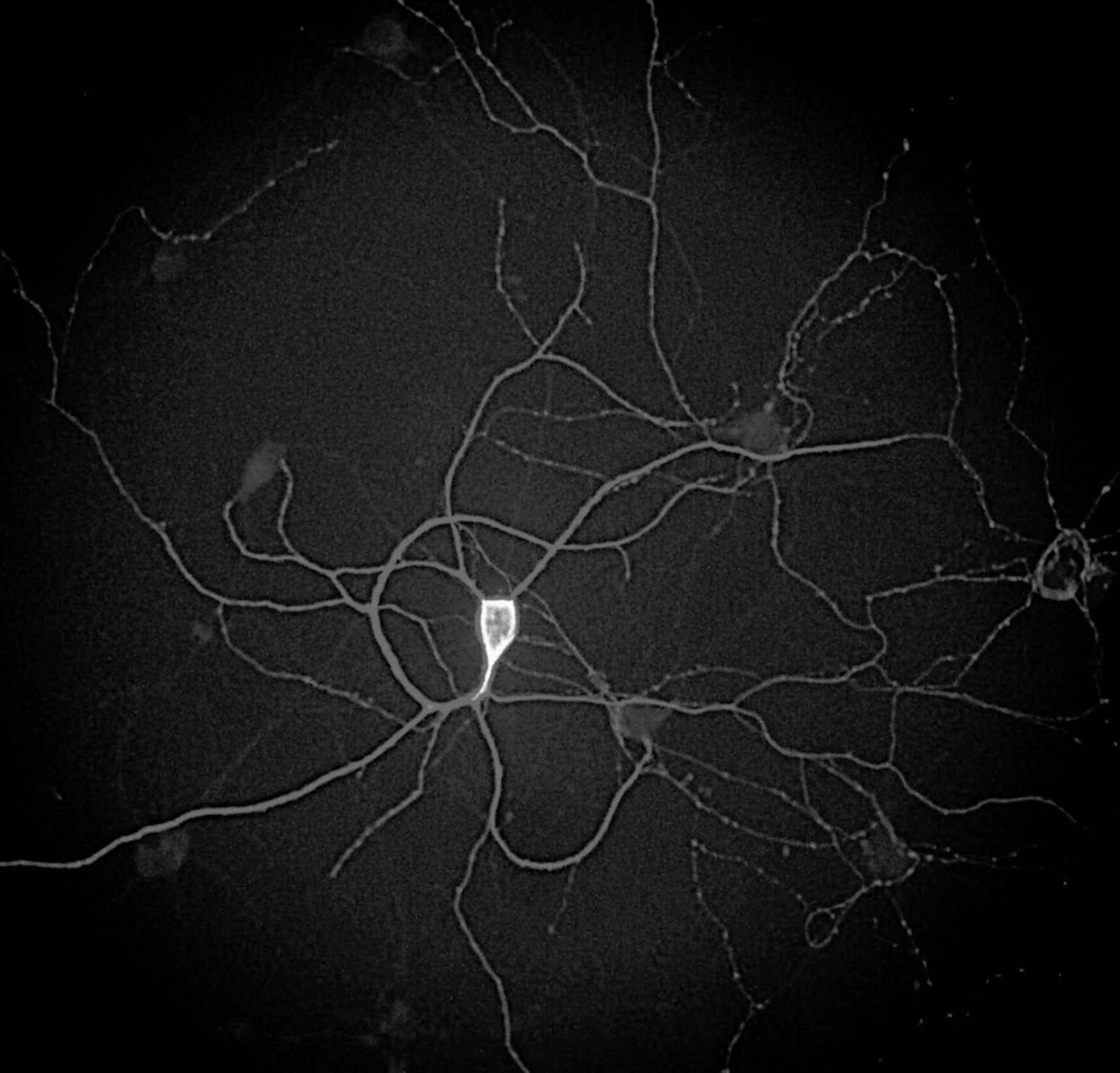Ученые разработали ультразвуковой метод лечения болезни Альцгеймера