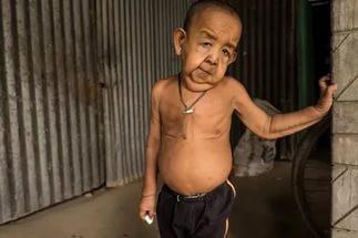 В Индии 21-летний парень обладает телом 165-летнего старца