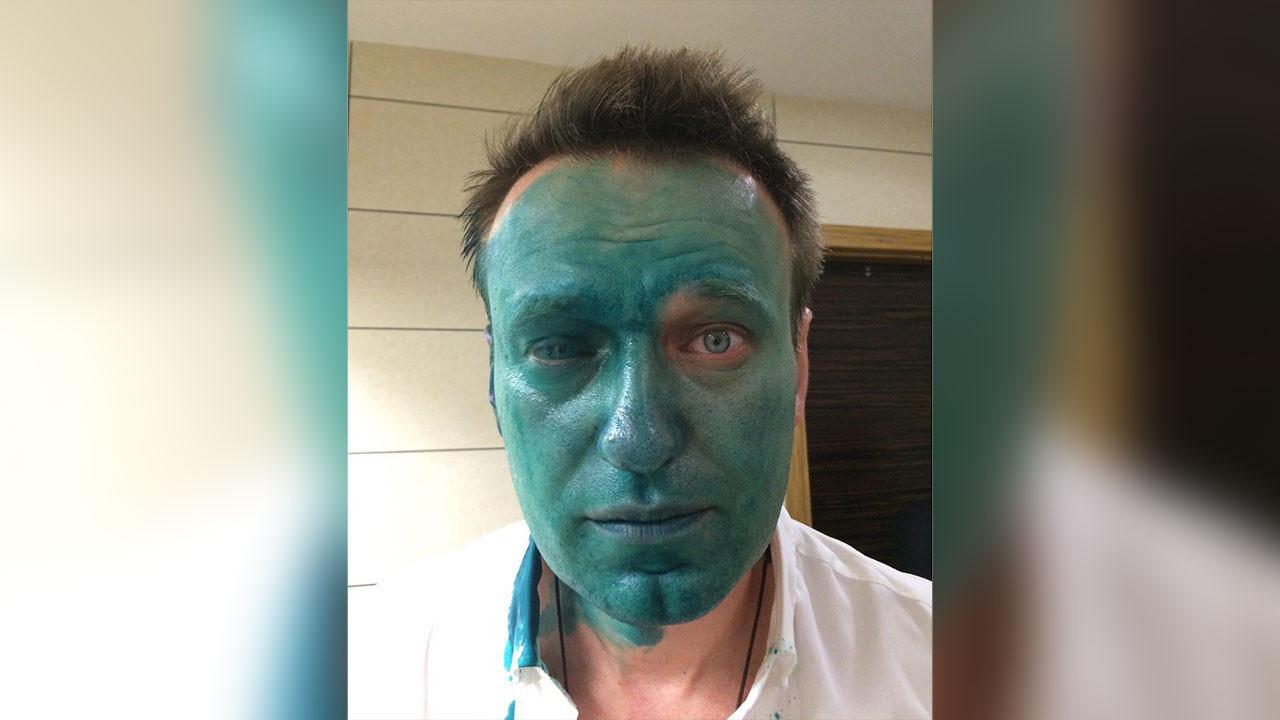 Навальный обвинил внападении сзеленкой администрацию президента