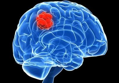 Учёными создана научно-фантастическая методика лечения опухоли головного мозга