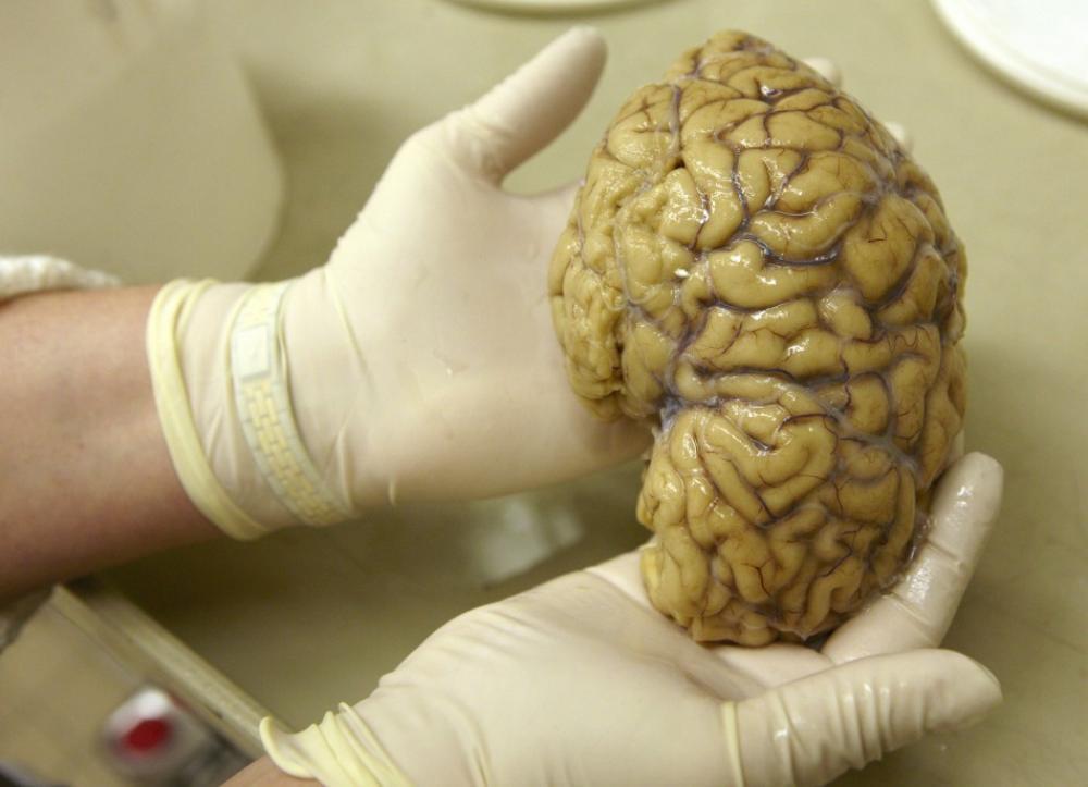 Ученые: Обнаруженный в мозге «GPS-навигатор» помогает человеку ориентироваться впространстве