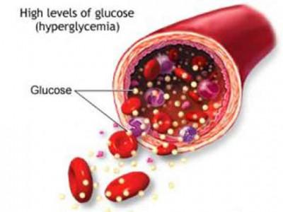 Учёные: Уровень глюкозы влияет на слабоумие