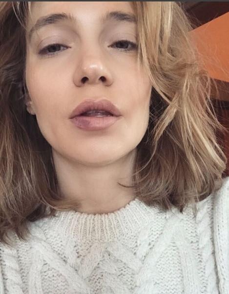 Избитая эстрадная певица Глюкоза в Instagram шокировала фанатов фото ссиняками