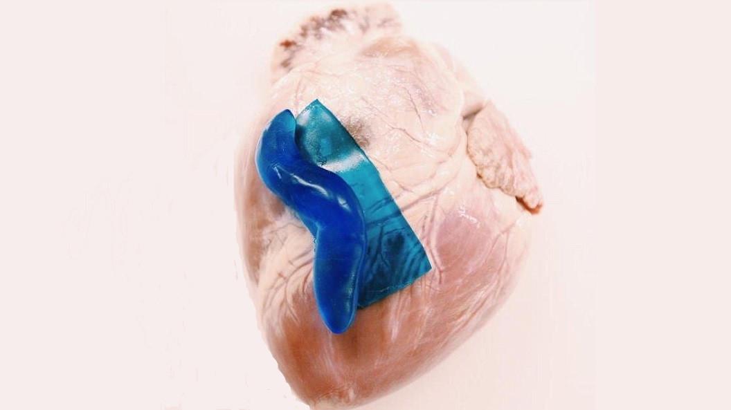 Ученые нашли способ склеивать «разбитое сердце»