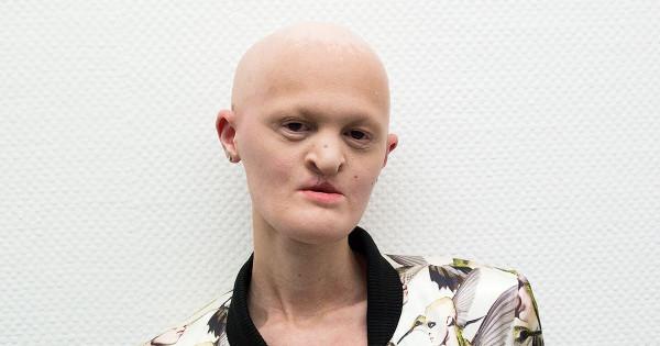 Модель без зубов и волос покорила модельный бизнес в США