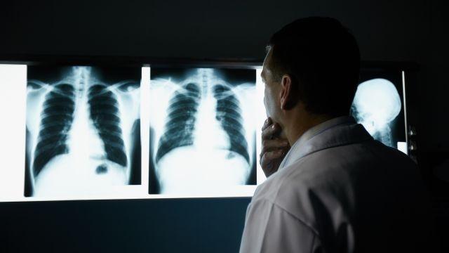Ученые пояснили  почему курение вызывает рак