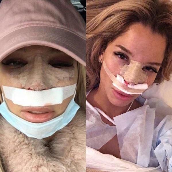 Звезда «Дома-2» Екатерина Колисниченко решилась наповторную пластику после безуспешной операции