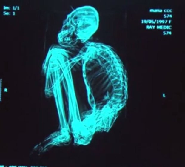 ВПеру нашли тела трёхпалых пришельцев