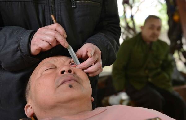 В Китае бреют глаза для улучшения зрения