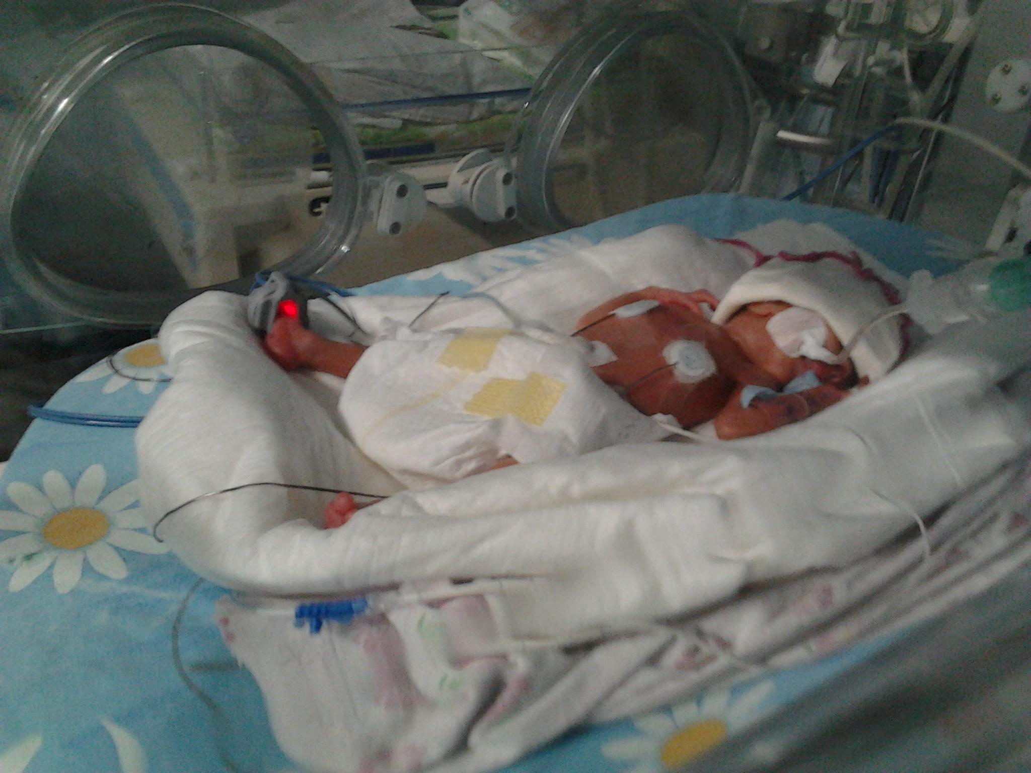 НаКубани медики выходили запять лет 800 недоношенных младенцев