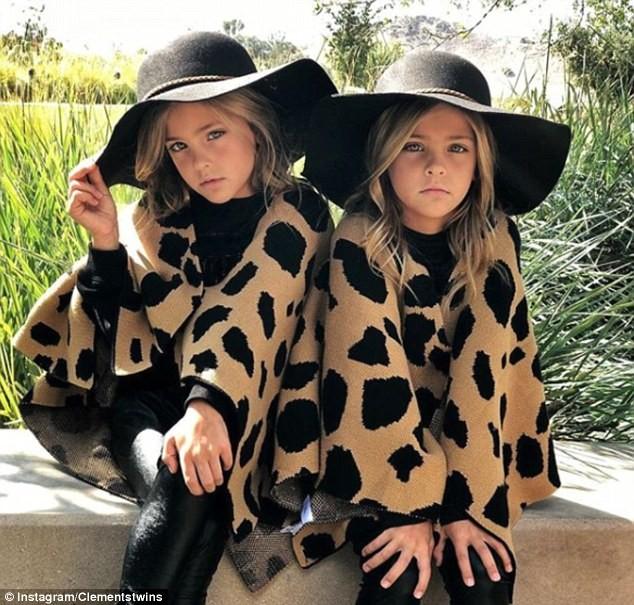 Девочки-близняшки изЛос-Анджелеса названы самыми красивыми вмире