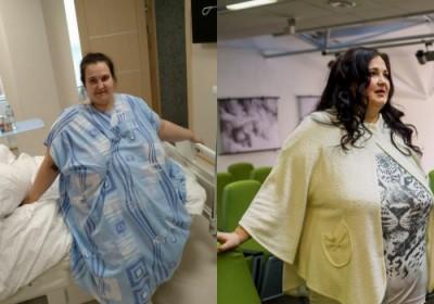 В Новосибирске врачи бесплатно ушили желудок женщине весом 185 кг