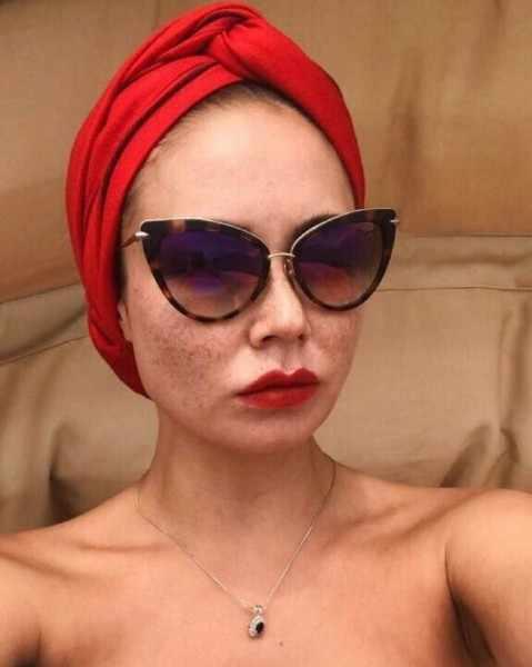 Ляйсан Утяшева ужаснула поклонников своей проблемной кожей лица