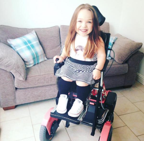 19-летняя англичанка с лицом двухлетнего ребенка продолжает радоваться жизни