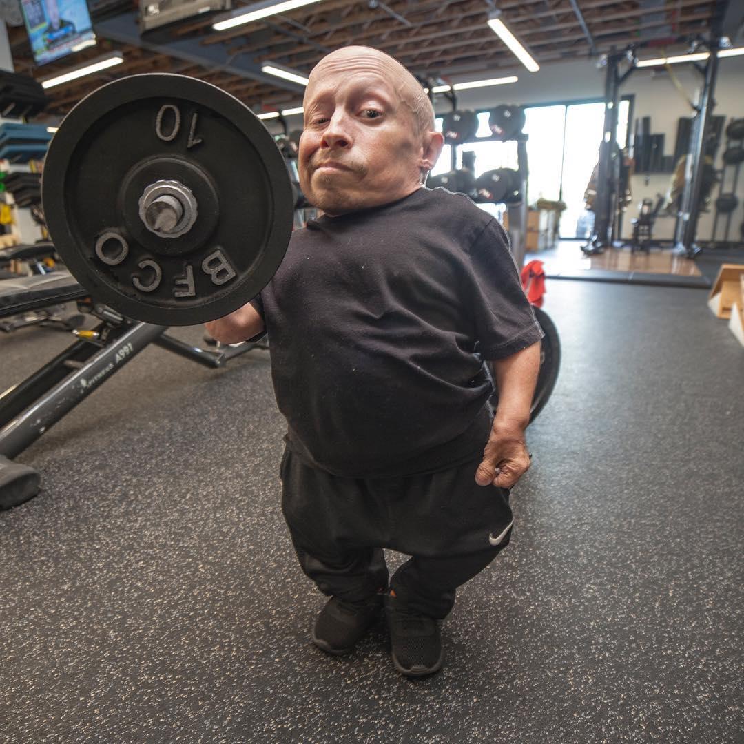 80-сантиметровый артист Верн Тройер загадочно госпитализирован вСША