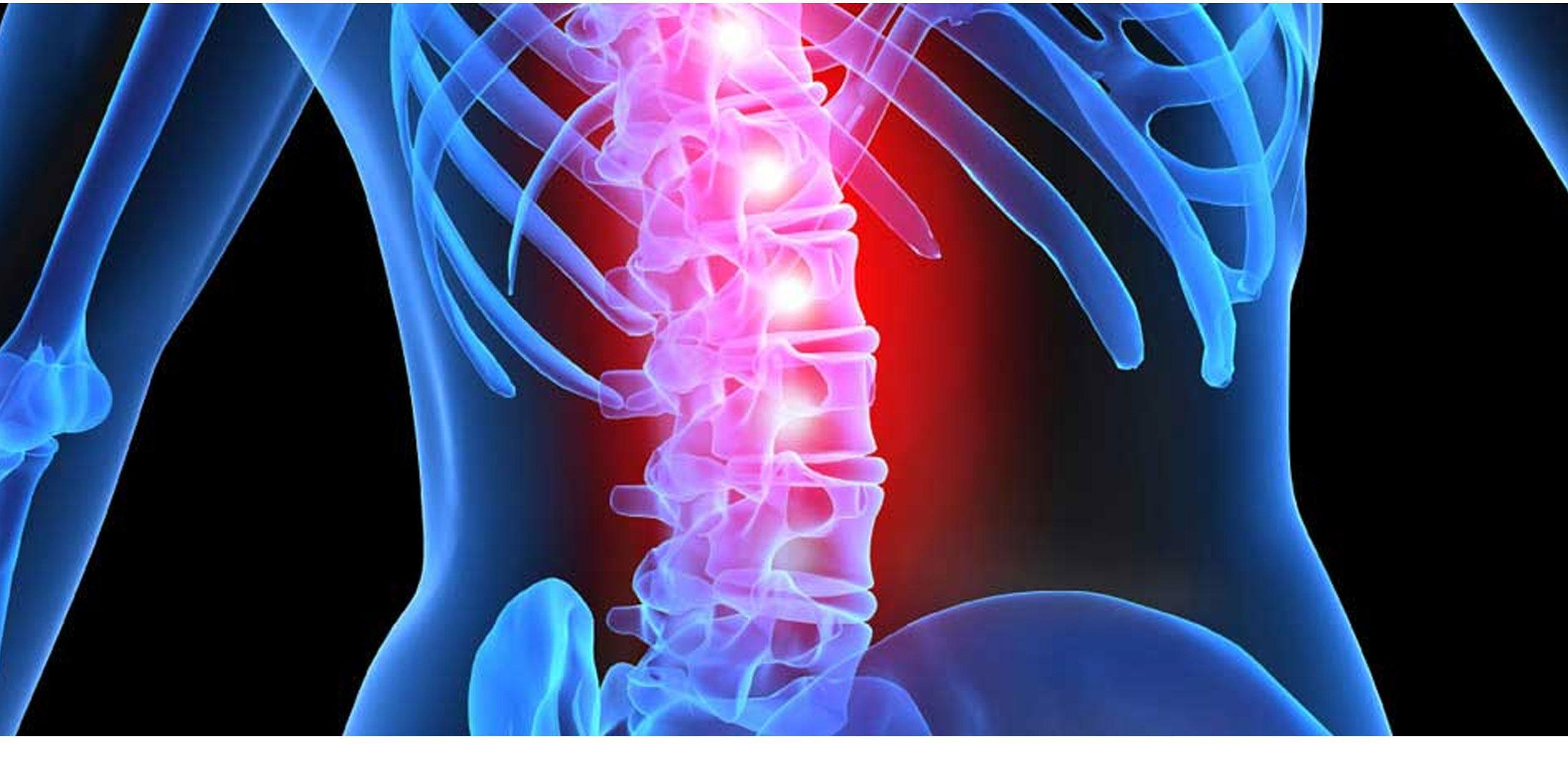 spinal cord injury patientsa - 960×444