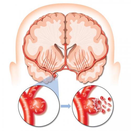 Аневризмы сосудов головного мозга могут грозить серьезной опасностью