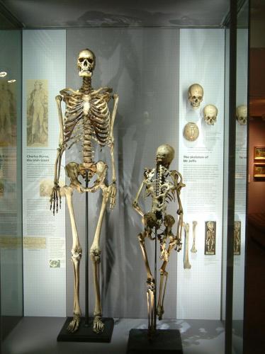 Скелет гиганта похоронят спустя 200 лет после смерти
