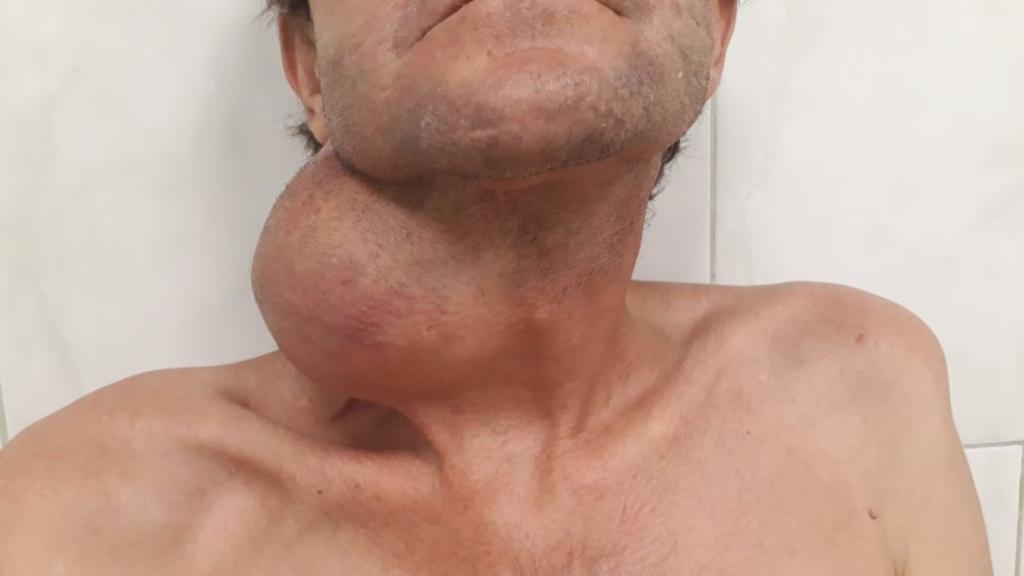 Краснодарские врачи спасли пациента от опухоли размером с арбуз