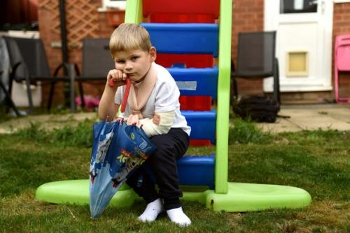 Ребёнок сломал руку из-за трюков в Fortnite