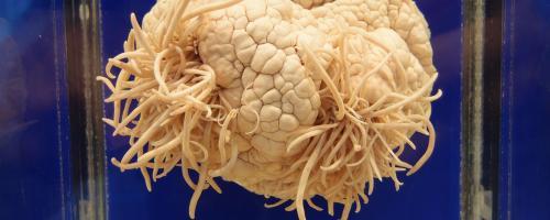 Ученые: У многих людей живут паразиты в голове