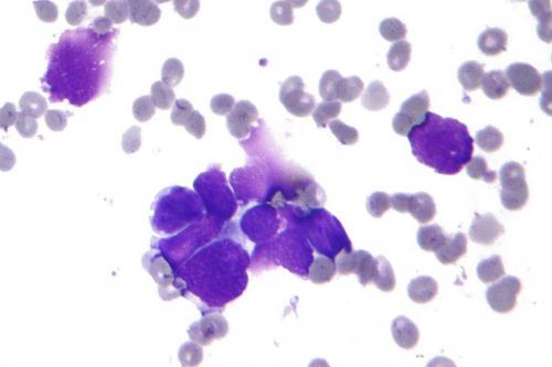 Психотропный препарат «Пимозид» может лечить рак груди - учёные