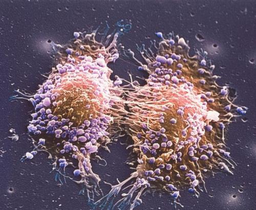 ИИ: врачи смогут предсказывать мутацию раковых клеток и персонализировать лечение