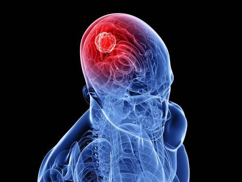 Врачи назвали пять основных симптомов рака головного мозга