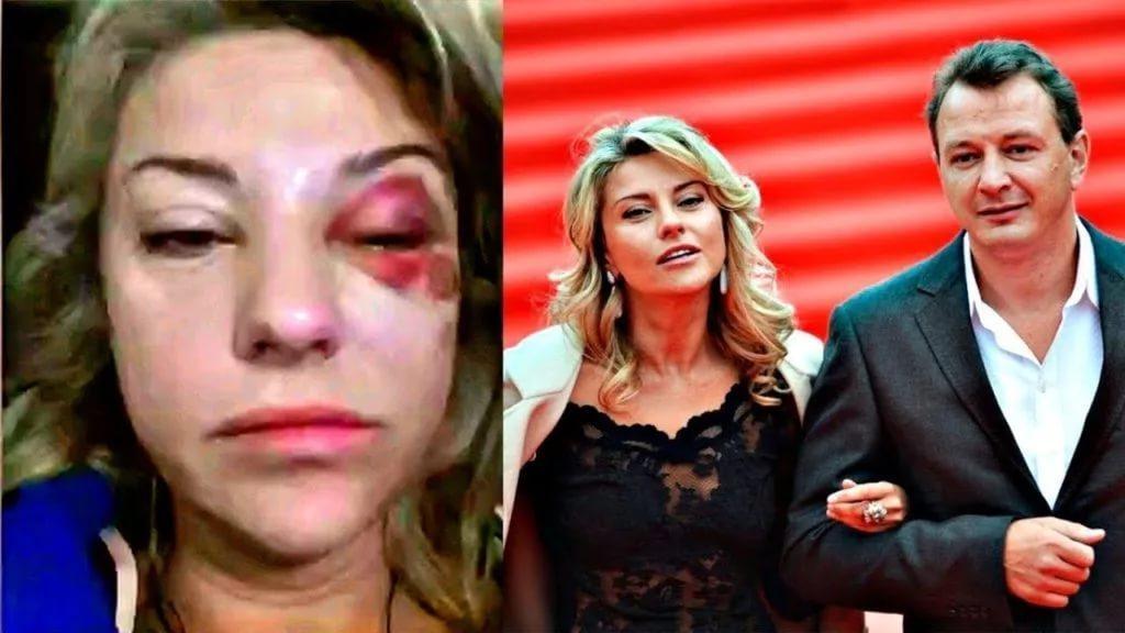 Марата Башарова лишили работы после избиения супруги